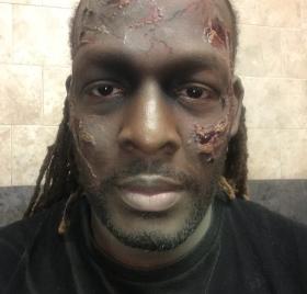 Kels as a Zombie
